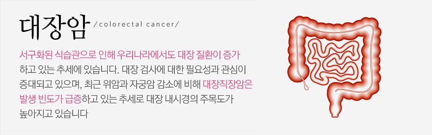 대장암:서구화된 식습관으로 인해 우리나라에서도 대장 질환이 증가하고 있는 추세에 있습니다. 대장 검사에 대한 필요성과 관심이 증대되고 있으며, 최근 위암과 자궁암 감소에 비해 대장직장암은 발생 빈도가 급증하고 있는 추세로 대장 내시경의 주목도가 높아지고 있습니다